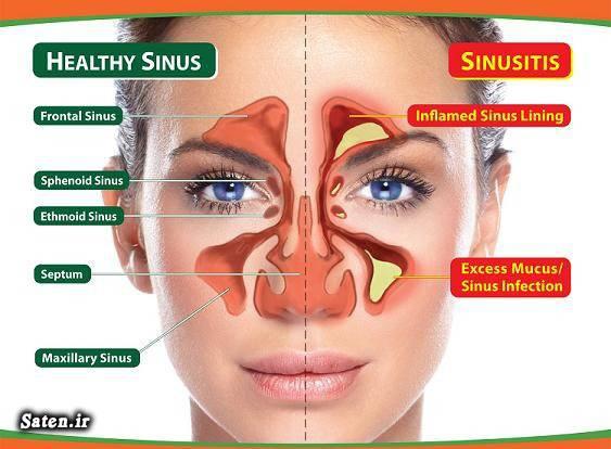 علائم عفونت سینوسی را بشناسید