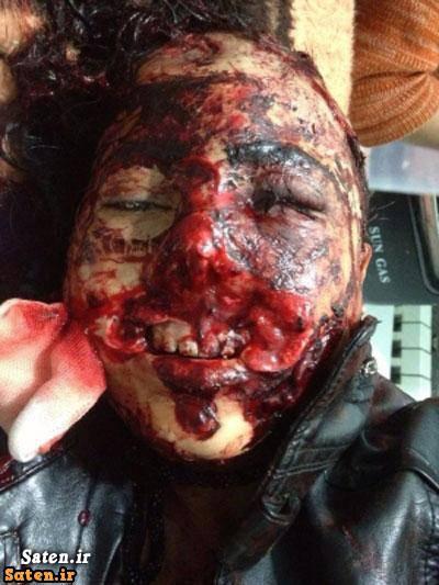 مرد معتاد عکس+18 درب قندهار خبرگزاری شفقنا افغانستان جنایت وحشیانه جنایت مرد معتاد تصاویر+18 بیمارستان هرات بریدن لب و بینی