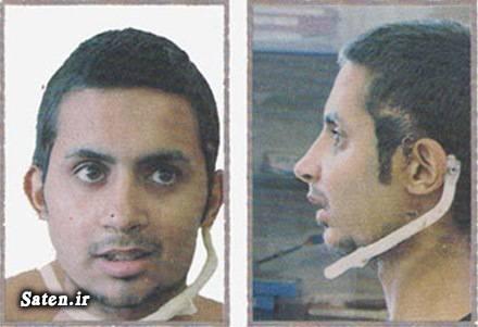 دکتر حسین عابدی خوش شانس حسین عابدی جراحی صورت جراحی زیبایی جراح حسین عابدی جایزه میلیونی