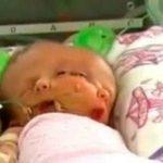 تولد کودکی عجیب الخلقه در استرالیا + عکس