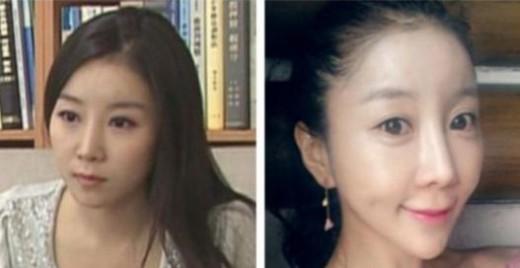 زن کره ای زن زیبا راز زیبایی و جوانی دختر زیبا جراحی زیبایی