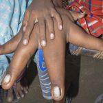 عکس های باورنکردنی از پسر بچه ای با دستهای غول پیکر