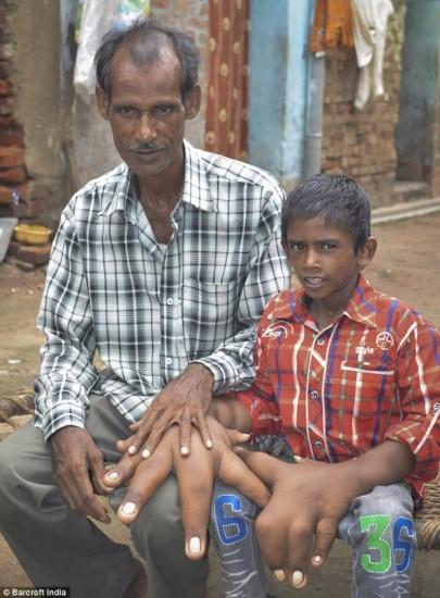 عکس جالب عجیب الخلقه دختر هندی انسان عجیب اخبار جالب