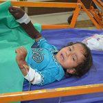 پله برقی انگشت کودک را قطع کرد + عکس