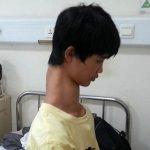 پسری ۱۵ ساله با گردنی عجیب + عکس