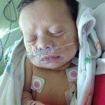 تولد دختری با قلب معکوس + عکس