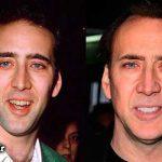 بازیگران مشهوری که دندان مصنوعی دارند! + عکس