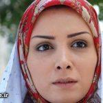 ضرر جراحی بینی برای بازیگر زن معروف ایرانی + عکس