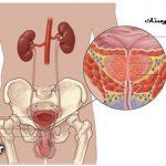علائم و روشهای پیشگیری از دومین بیماری کشنده مردان