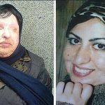 آمنه بهرامی قبل و بعد از اسیدپاشی + عکس