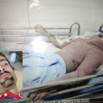 اسیدپاشی دو زن بر روی مرد جوان در هشترود + عکس