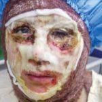 دم خروس داستان اسیدپاشی در اصفهان بیرون زد!