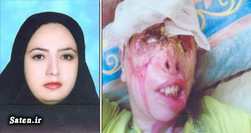 عکس اسید پاشی دختر زیبا اخبار حوادث اخبار جنایی