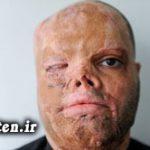 حکم قصاص  یکی دیگر از متهمان اسیدپاشی تایید شد