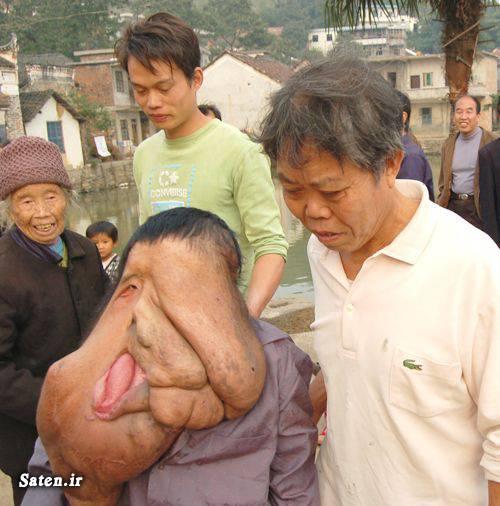 زشت ترین مرد راز یبایی بیماری نادر بیماری عجیب انسان عجیب اخبار جالب