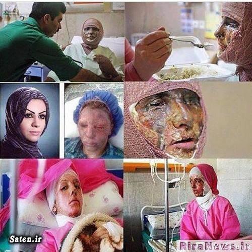 فیلم اسید پاشی عکس اسید پاشی اسید پاشی اصفهان اخبار حوادث