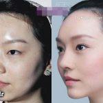معجزه جراحان زیبایی روی دختران و زنان چینی! + عکس