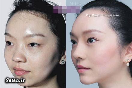 عکس جراحی زیبایی زن چینی راز زیبایی و جوانی دختر چینی جراحی زیبایی انواع جراحی زیبایی