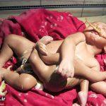 تولد کودکی عجیب با ۴ دست و ۴ پا + عکس