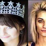 چهره ملکه زیبایی مشهور بعد از اعتیاد به شیشه + عکس