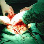 تومور ۱۲ کیلویی در شکم یک زن آملی (عکس)