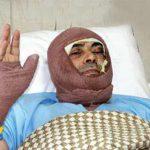 اعترافات تکان هنده پزشک اسیدپاش بیمارستان ضیائیان