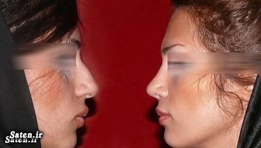هزینه جراحی زیبایی هزینه جراحی بینی قیمت جراحی دماغ جراحی زیبایی جراحی بینی