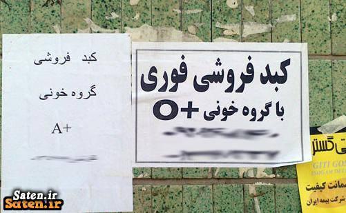 متخصص گوارش و کبد قیمت کبد فروش کبد پیوند کبد بیوگرافی سید علی ملک حسینی