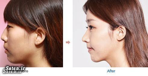 هزینه جراحی زیبایی هزینه جراحی بینی عکس جراحی بینی جراحی زیبایی