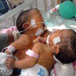 تولد نوزادان دوقلوی به هم چسبیده با یک قلب مشترک + عکس