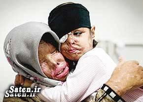 قربانی اسید پاشی عکس سمیه مهری عکس اسید پاشی تهران حوادث بم اخبار بم