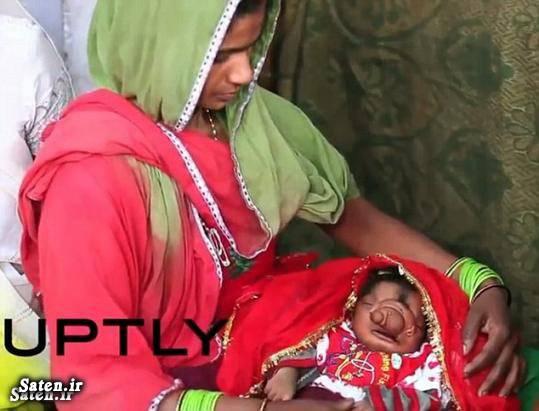 عجیب الخلقه زن هندی تولد نوزاد عجیب انسان عجیب اخبار هند