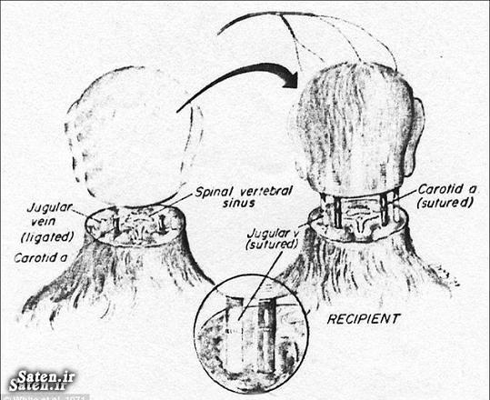 عجیب ترین جراحی جراحی نادر