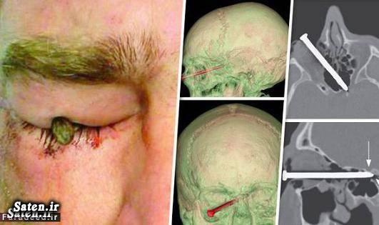 معجزه پزشکی عکس های جالب و زیبا عکس معجزه حوادث واقعی