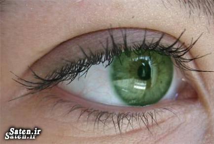 هزینه جراحی زیبایی متخصص اپتومتریست کاشت نگین داخل چشم جراحی زیبایی انواع جراحی زیبایی