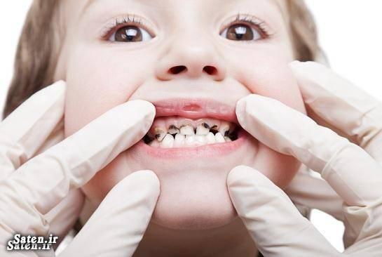 پوسیدگی دندان بهداشت دهان و دندان اخبار تهران