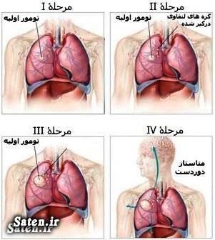 مجله سلامت علائم و درمان سرطان ریه درمان سرطان