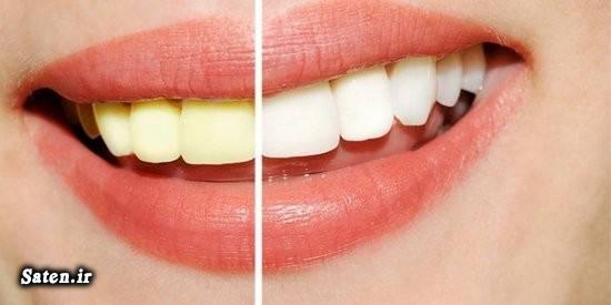 مجله سلامت سفید کردن دندان زیبایی دندان پوسیدگی دندان بهداشت دهان و دندان