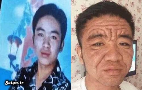 زندگی در چین بیماری نادر بیماری عجیب اخبار چین Yuan Taiping