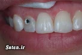 نگین دندان مجله سلامت مجله پزشکی زیبایی دندان پوسیدگی دندان بهداشت دهان و دندان