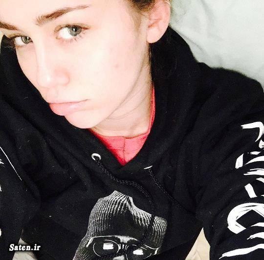همسر مایلی سایرس درمان جوش صورت بیوگرافی مایلی سایرس Miley Cyrus