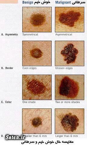 مجله سلامت مجله پزشکی سرطان پوست خال صورت پیشگیری سرطان پوست