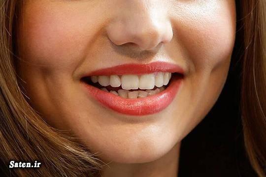 عکس زن زیبا عکس دختر زیبا زیبایی چال گونه جراحی زیبایی جراحی چال گونه
