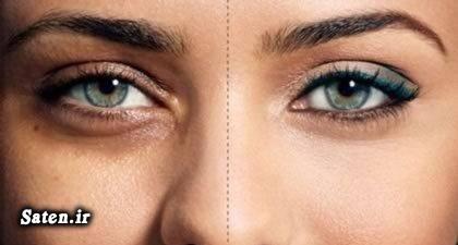 متخصص طب سنتی طب سنتی زیبایی صورت زیبایی چشم