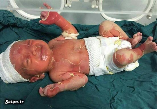 زردی نوزاد حوادث پزشکی اخبار صومعه سرا