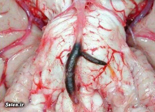 مجله سلامت مجله پزشکی سکته مغزی تنظیم فشار خون پیشگیری سکته مغزی