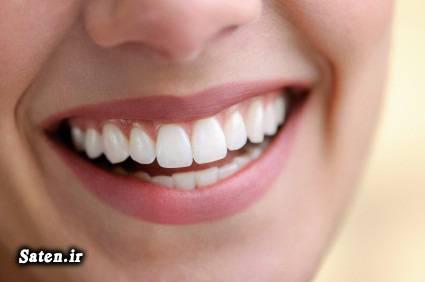 متخصص دندانپزشک فویل آلومینیومی سفید کردن دندان زیبایی دندان خواص جوش شیرین پوسیدگی دندان بهداشت دهان و دندان