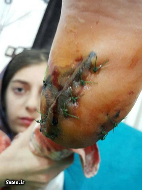 نورآباد لرستان حوادث واقعی حوادث پزشکی حواد لرستان اخبار کرمانشاه اخبار دلفان