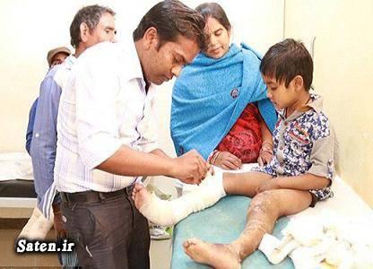 بیماری نادر بیماری عجیب اخبار هند