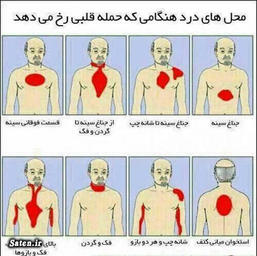 نتیجه تصویری برای علائم سکته و حمله قلبی | نحوه پیشگیری از سکته قلبی | علت و دلیل حمله قلبی